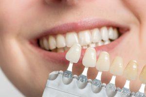 Embrace-Dental-Ortho_Veneer-Image