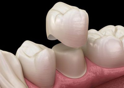 embrace-dental-ortho-crowns