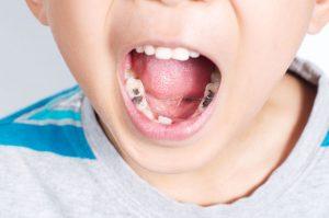 embrace-dental-ortho-fillings_photo