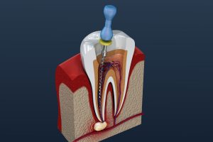embrace-dental-ortho-root-canals
