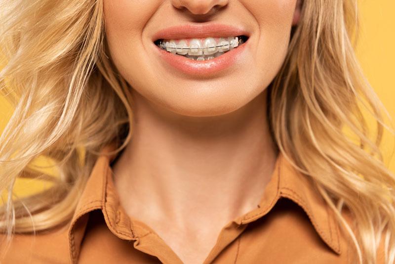 brace-2-embrace-dental-orthodontics