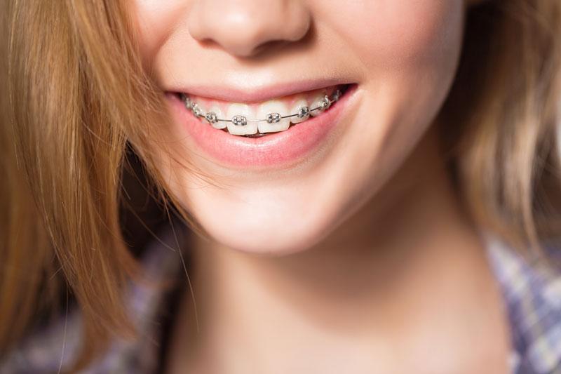 braces-embrace-dental-orthodontics