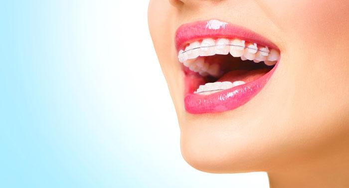 braces_3_embrace-dental-orthodontics