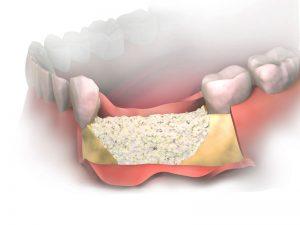 embrace-dental-ortho-bone-grafting