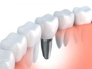 embrace-dental-ortho-implants