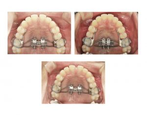 embrace-dental-ortho-mse