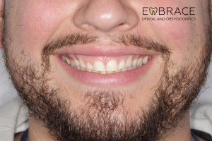 AnteriorVeneer_B_Embrace-Dental-Orthodontics