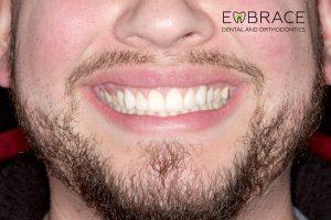 AnteriorVeneer_After-Embrace-Dental-Orthodontics