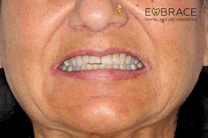 Bonded-Veneer-Embrace-Dental-Orthodontics