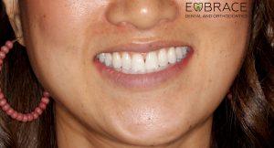 CompositeVeneers_Triangle-Embrace-Dental-Orthodontics