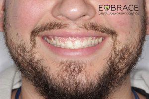 GumLift_Before-Embrace-Dental-Orthodontics
