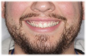 Crown lengthening to improve a gummy smile